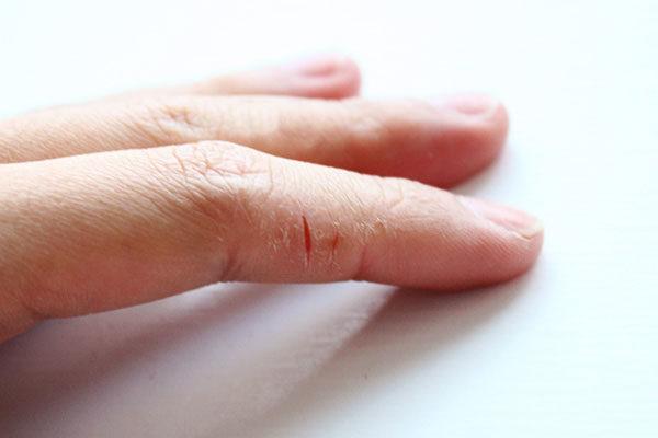 Потресканая кожа рук, сухая кожа зимой