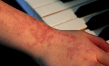 allergiya na obezcvechivanie volos