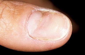 krivaya nogtevaya plastina, defekti nogtey, anomalii nogtey, iskrivlenie nogtya, prichiny iskrivleniya nogtya, bolezni nogtey, deformaciya nogtey