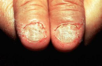 krivaya nogtevaya plastina, defekti nogtey, anomalii nogtey, iskrivlenie nogtya, prichiny iskrivleniya nogtya, bolezni nogtey, deformaciya nogtey, onihodistrofiya