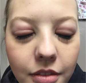 allergiya na narashchivanie resnic, allergiya na resnicy, allergiya na naraschivanie, allergiya, krasnota posle narashchivaniya resnic, razdrazhenie ot naroschenyh resnic