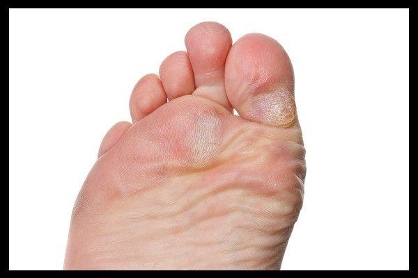 lechenie natoptishey i mozoley, lechenie moxoley, lechenie natoptishey, kak vylechit mozoli, kak vilechit natoptyshy, naterla mozol, kak ne natirat nogi, esli naterli nogi, mozoli na nogah, natoptishy na nogah, suhie mozoli, tverdie natoptyshy, tresnuvshie pyatki, kak srezat mozoli, kak izbavitsya ot mozoley, mozoli na rukah, mozoli na pyatkah
