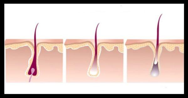 fazy rosta volos, etapy rosta volos, stadii rosta volos, anagen, katagen, telogen, eksogen, kak rastut volosy, kak otrastit volosy, s kakoy skorostyu rastut volosy, rost volos, kak uskorit rost volos, kogda delat epilyaciyu, kogda delat depilyaciyu, voskovaya depilyaciya, lazernaya epilyaciya