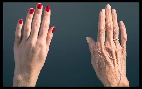 kak sohranit molodost' kozhy, molodost kozhy na rukah, ruki vidayut vozrast, kak ubrat pigmentnie pyatna na rukah, kak ubrat pigmentnie pyatna na kozhe, kak zamedlit starenie kozhy, kak omolodit kozhy ruk, kak uluchshit sostoyanie kozhy ruk, sredstvo ot suhosti kozhy ruk, kak uvlazhnit ruki