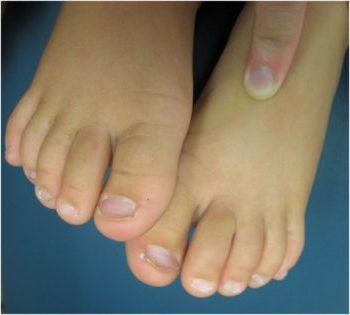koilonihiya, nogti-lozhki, nogti s uglubleniyami, yamki na nogtyah, vognytie nogti, nogti izmenili formu, nogti vygnulis, bolezni nogtey, izmeneniya nogtey, pozhemu nogti menyayut formu, koilonichiya u detey