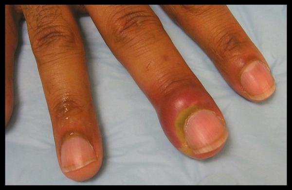 vospalenniy zausenec, inficirovanniy zausenec, naryv palca, opuh palec, paronihiya, vospalenie nogtya, vospalenie palca, zausenec, zausenec bolit, infekciya na palce, chto delat esli bolit zausenec, kak lechit vospalenniy zausenec, kak ubrat gnoy iz palca