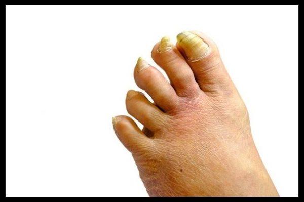 onichogriphoz, utolschenie nogtya, bolezni nogtey, pochemu nogot zakruchivaetsya, onychogryphosis, zheltiy nogot, gribok na nogtyah, gribkovaya infekciya na nogahm kak lechit onichogriphoz, chem lechit onichogriphoz, lechenie onichogriphoza