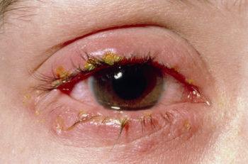 blefarit resnic, blefarit, vospalenie resnic, vospalenie glaza, na resnicah korochka, cheshetsya glaz, resnicy slipayutsya, glaz opuh, blefarit posle naraschivaniya, infekciya glaza