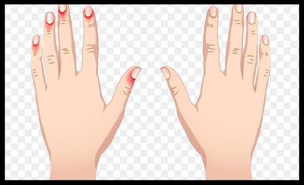 allergiya na manicur, allergiya posle manicura, allergiya na akril, allergiya na gel lak, allergiya na gelevie nogti, razdrazhenie kozhy ruk, razdrazhenie ot manicura, cheshetsya kozha ruk, allergicheskiy dermatit, psoriaz nogtey